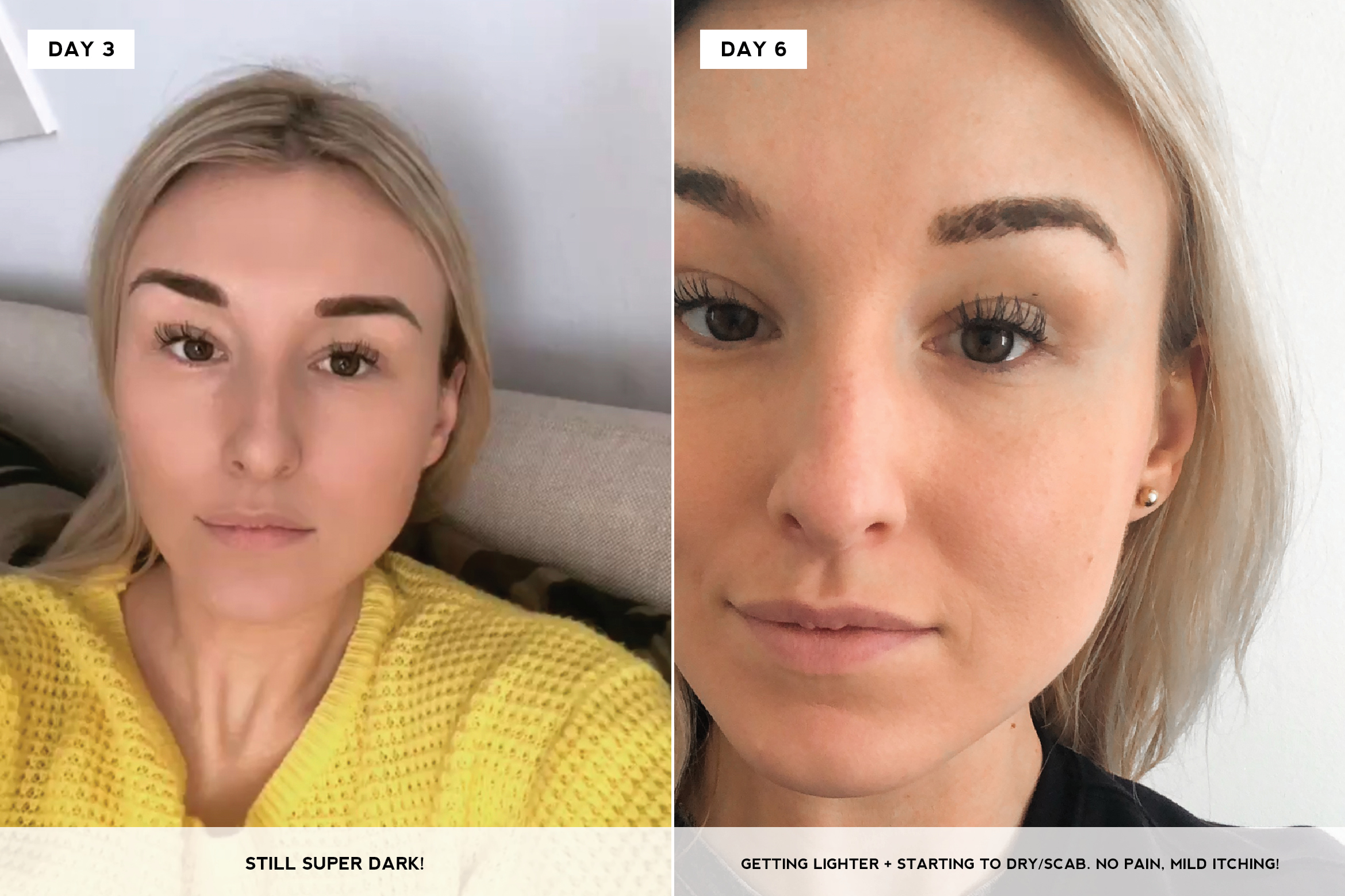 Eyebrow Microblading 101 What It Is And Why Youll Want To Do It